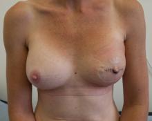 Results following Left Mastectomy, implant reconstruction and Nipple reconstruction. Right Breast Augmentation for symmetry