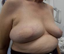 Right Skin Sparing Mastectomy, LD Flap + implant, results at 1 year
